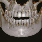 Компьютерная томография зубов 3D